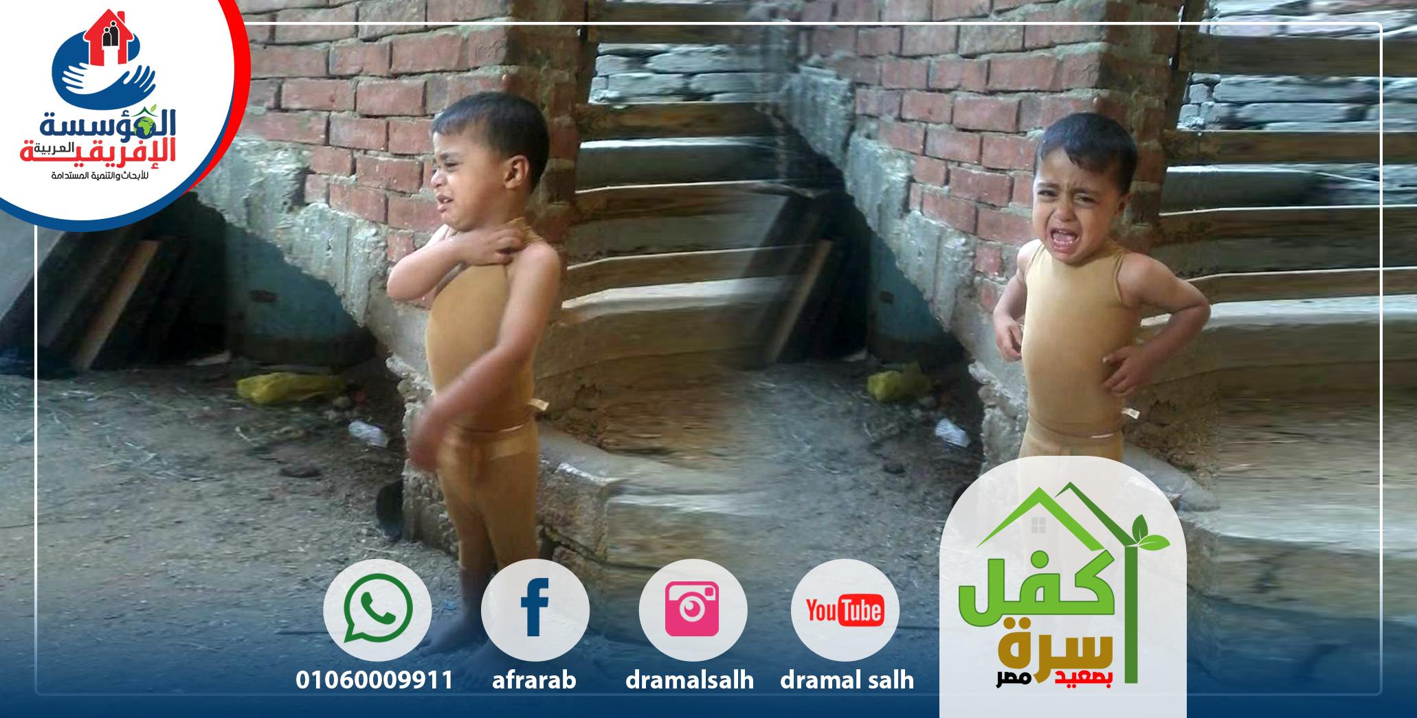 Photo of مساهمات المؤسسة العربية الأفريقية فى حالات الحروق عند الأطفال