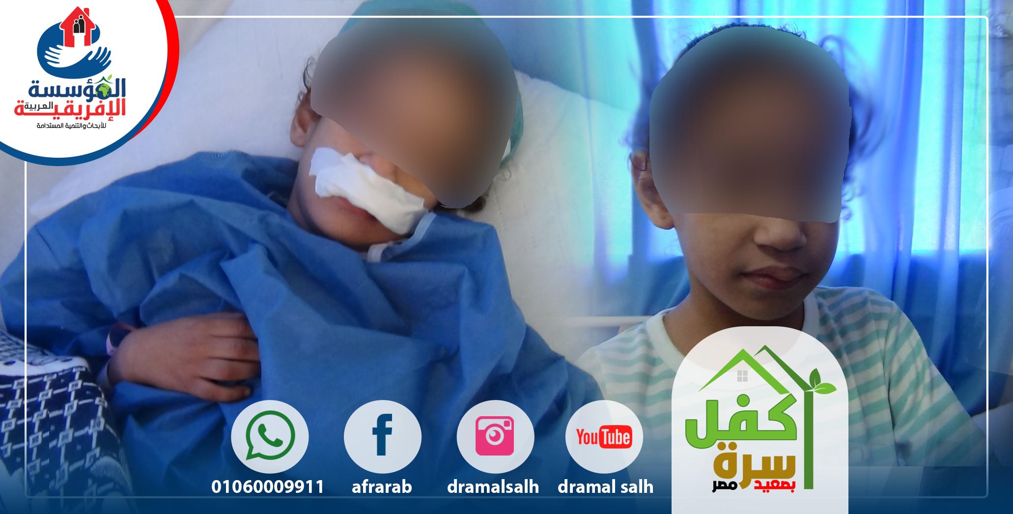 Photo of استئصال وحمة دموية بالوجه لطفلة الثمن سنوات