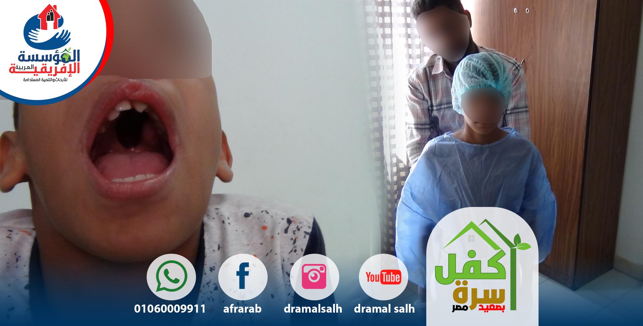 Photo of عملية ترقيع سقف الفم للطفل (ع- م )