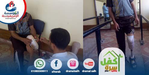 Photo of تستمر المؤسسة فى تركيب الاطراف لمن فقدها